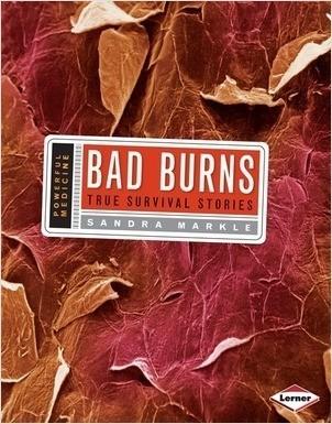 Cover: Bad Burns: True Survival Stories